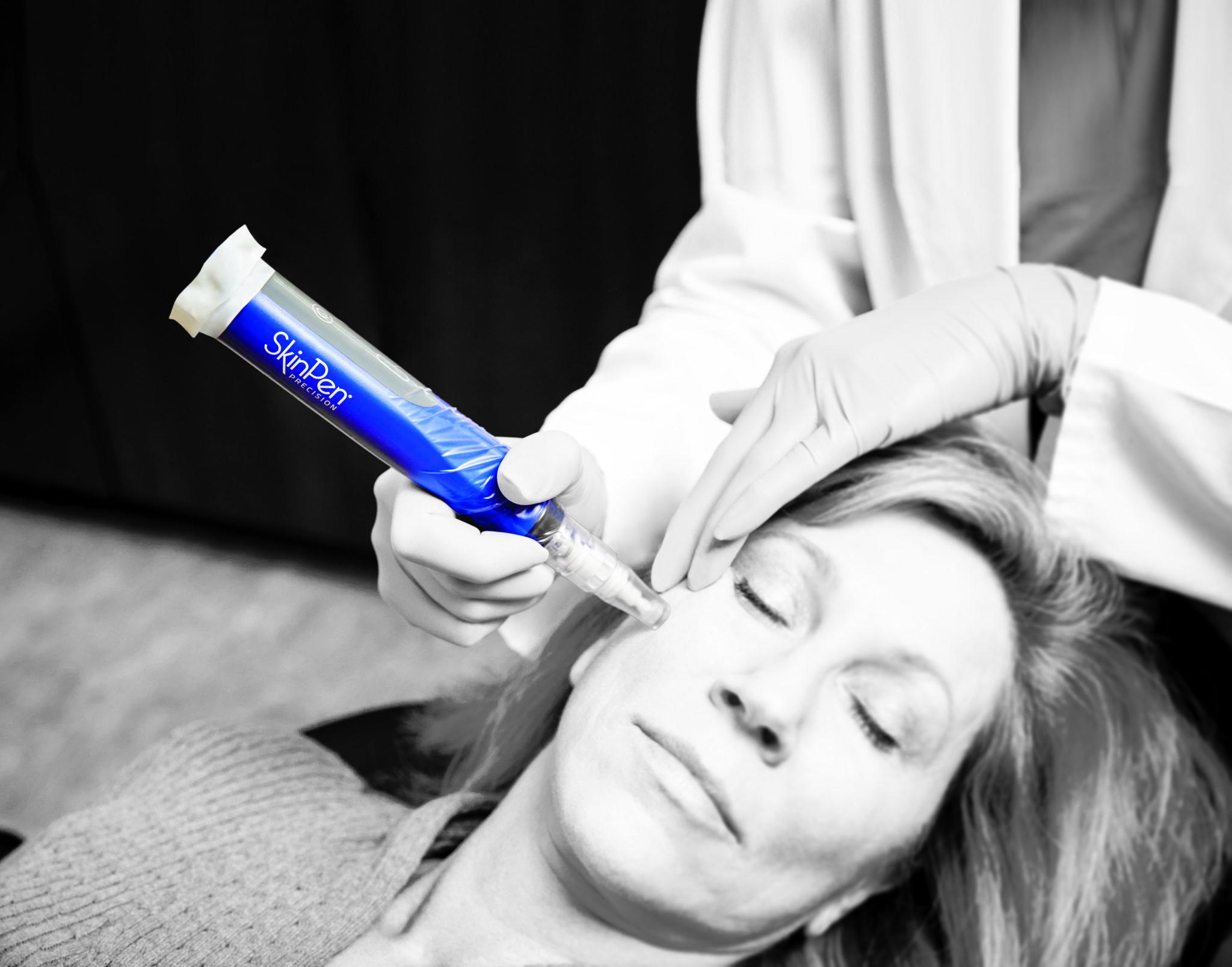 SkinPen® Precision Micro-needling