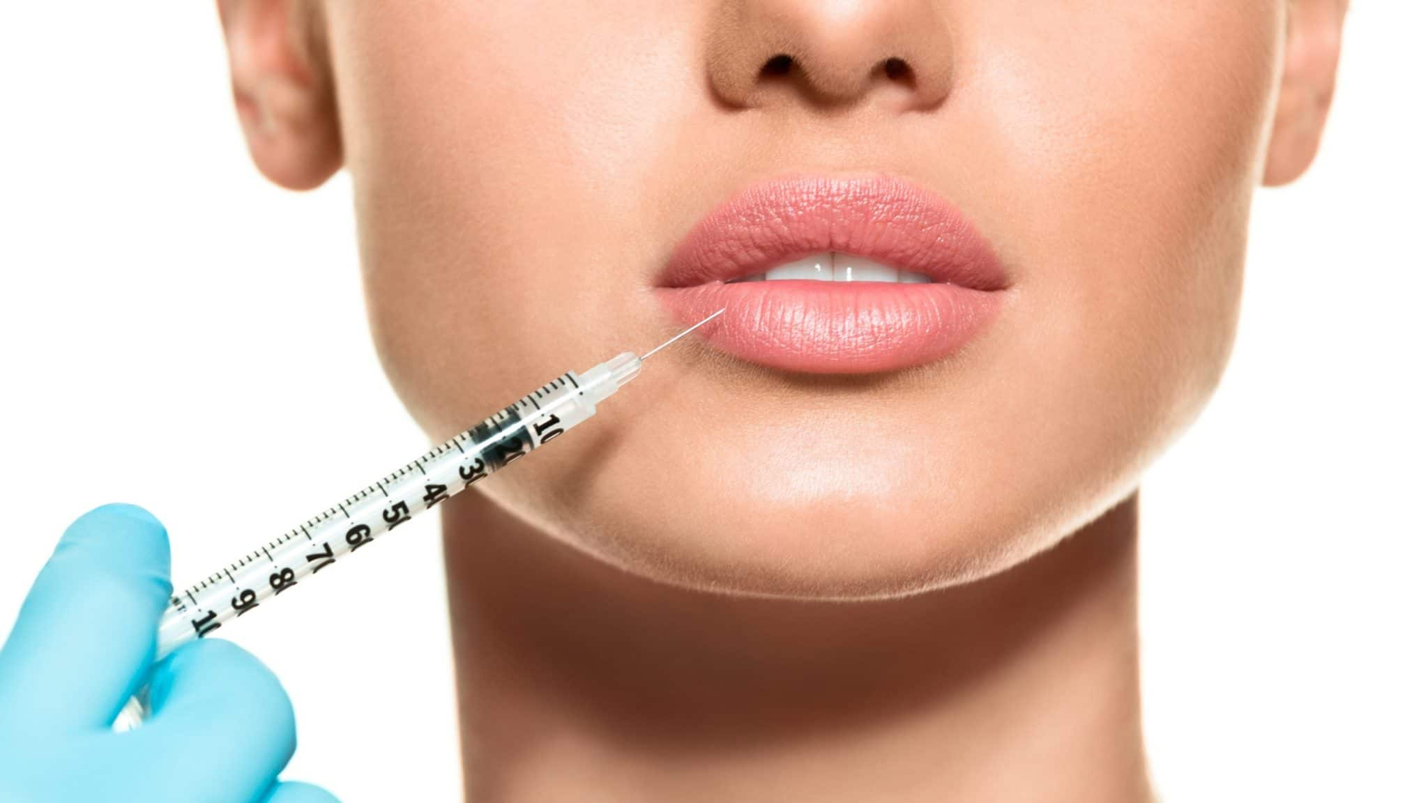 Lady receiving lip filler injection