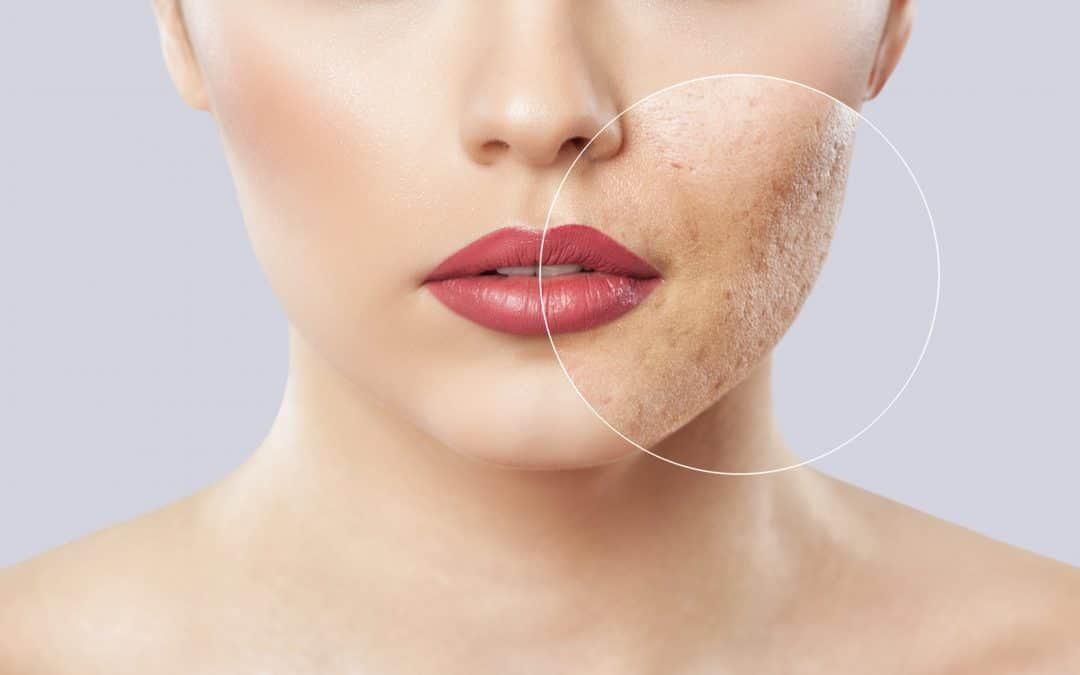 Lady with acne scarring covered by make up