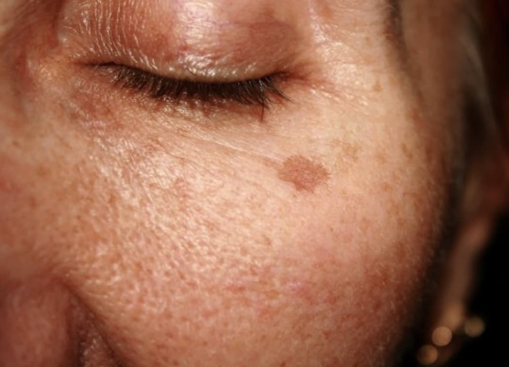person with Hyperpigmentation or age spot on their face
