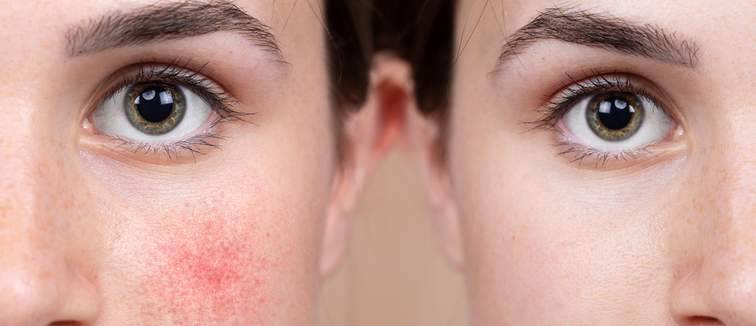 Lady with rosacea