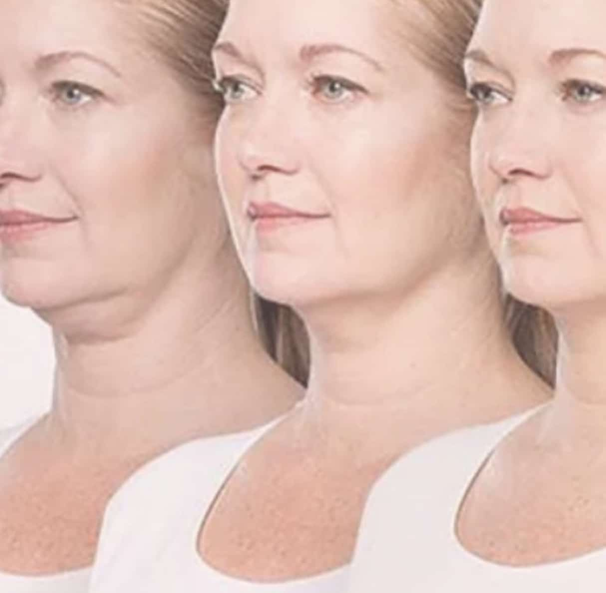 Three ladies with reducing chin size through using fat dissolving injections